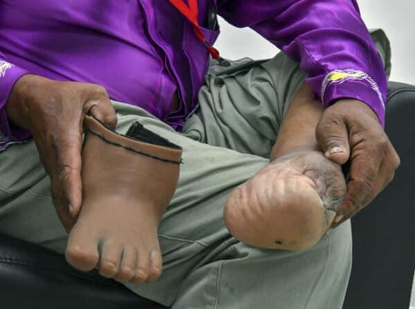Veteran tentera reda cacat akibat jerangkap samar ketika buru komunis